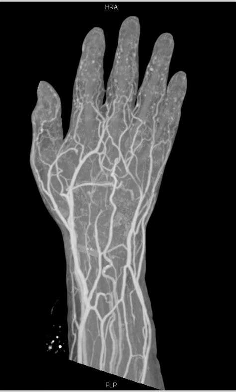 Cellulitis Dorsum of the Hand - Musculoskeletal Case