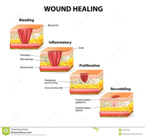 wound healing stock vector image  injury connective