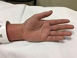 Infectious Mononucleosis: Pharyngitis and Morbilliform ...