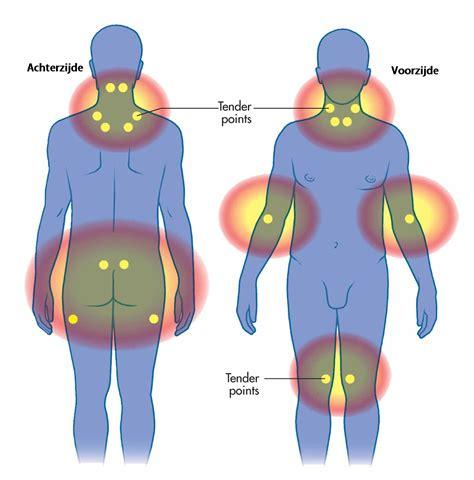 klachten fibromyalgie