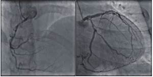 Coronary Angiogram Revealing Three