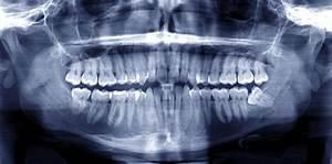 Symptome Dent De Sagesse : douleur aux dents de sagesse al dente centre de sant dentaire ~ Maxctalentgroup.com Avis de Voitures