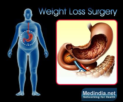 Bariatric Surgery Or Weight Loss Surgery  Types. Indiana Transition To Teaching. Compare Dish And Directv Channels. What Is Mms Messaging On Iphone. Apply Online For Credit Card With Instant Approval. Best Online Rn To Bsn Program. Gravity Roller Conveyor Manufacturers. Ba Degree In Psychology Crm For Photographers. What Is The School Code For Kaplan University Online