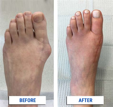 Dealing With Painful Bunions   Gift Ftempo