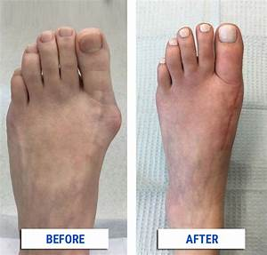 After Your Bunion Surgery