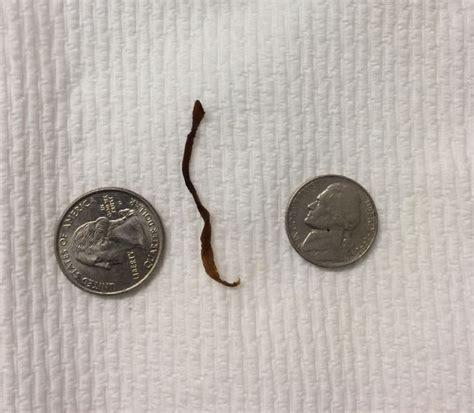 identification  human parasite  egg
