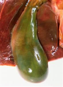 Чистка желчных протоков печени при удаленном желчном пузыре