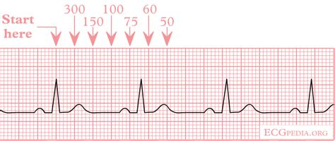 heart rate wikidoc