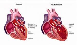 Illustration Of A Healthy Heart And One With Heart Failure