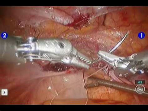 Robotic Hysterectomy part 3 of 3 - YouTube