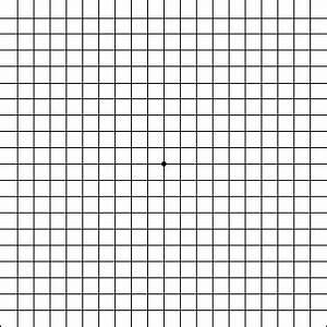 Amsler Grid Free Macular Degeneration Test