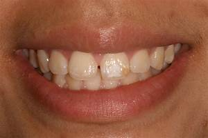 Are White Spots On Your Teeth Affecting Your Smile? - Dentist in Bounds Green - Dental Blog ...  Child Dental Health Teeth
