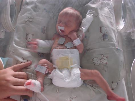 foetus 7 mois carabiens le forum