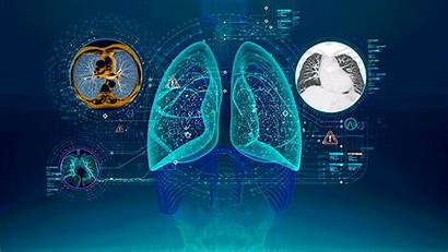 Artificial Intelligence Healthcare Iot Animation Machines Investments