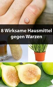 Mittel Gegen Wanzen : 8 wirksame hausmittel gegen warzen hogmag ~ A.2002-acura-tl-radio.info Haus und Dekorationen