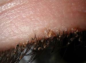 Crabs STD (Pubic lice) detailed Pictures & Images