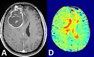 Mri Without Contrast Agents  Yes  With Sugar