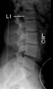 L1 Vertebrae Fracture - Anatomy