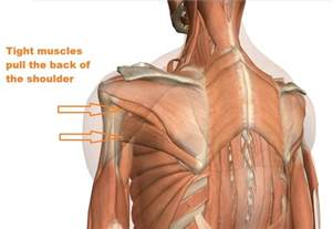 Shoulder Muscles and Ligaments Pain