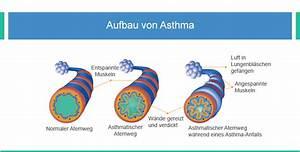Wie Entsteht Schimmel : asthma durch schimmel tipps vorsichtsma nahmen ~ Bigdaddyawards.com Haus und Dekorationen