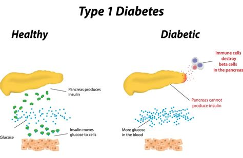 ayurvedic treatment  diabetes remedies  tips