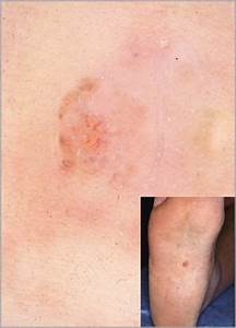 25+ best ideas about Acral lentiginous melanoma on ...