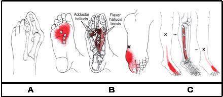 mf treatment modalities  bunion feet  myofascial
