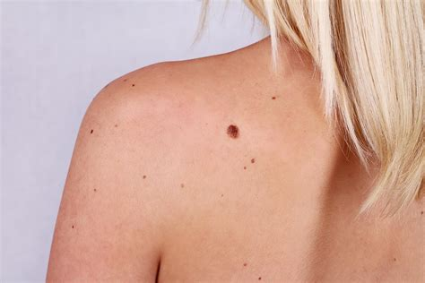 Melanoma Skin Cancer What Moles To Look Out For The