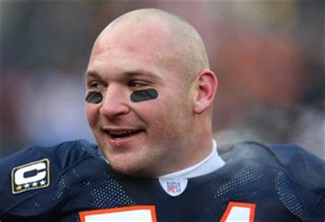 Hair Implants Canton Oh 44735 Brian Urlacher Shows Of Hair After Procedure