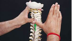 Snags  Lower Cervical Spine C3  Stiffness In