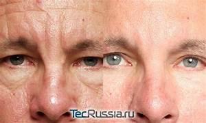 Фотошоп против морщин