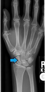 Level 1 - Carpal  U0026 Tarsal Bones