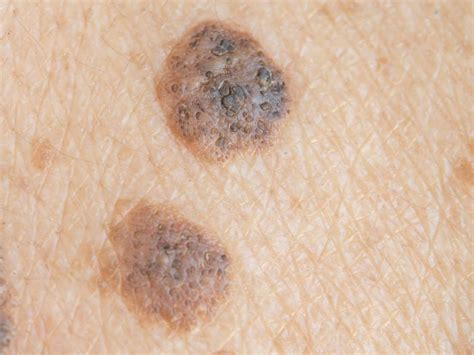 skin cancer symptoms treatment and shop