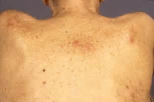 Chronic Lymphocytic Leukemia Skin Rash