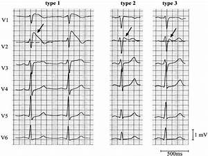 Brugada Syndrome - Life in the FastLane ECG Library