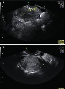 Ultrasound And Infertility