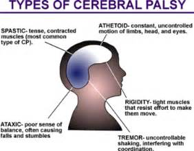 Michigan cerebral palsy lawyers talk about the types of cerebral palsy  Reduced intellect (sometimes) Cerebral Palsy