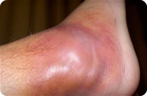 Staph Infection (staphylococcus Aureus) Symptoms. Business Debt Consolidation Companies. Air Conditioning Repair Camarillo. Storage Units Bridgeport Ct How To Sell Rv. Banks For Small Business Loans. Cheap Cash Cars For Sale In Houston Tx. Pitney Bowes Competition Mooney Family Dental. Illinois Career Information System. Partially Erupted Wisdom Tooth Extraction