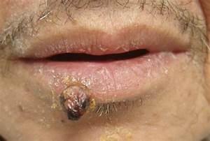 Pyogenic Granuloma - Pictures, Treatment, Causes and ...