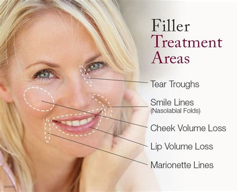 fillers for your face
