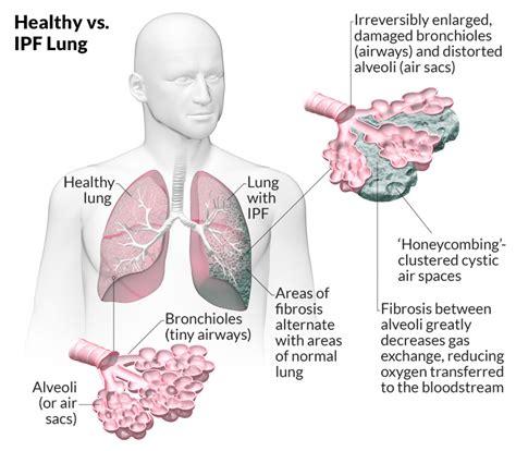 idiopathic pulmonary fibrosis ipf lungs