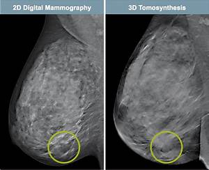 Tomosynthesis vs ultrasound