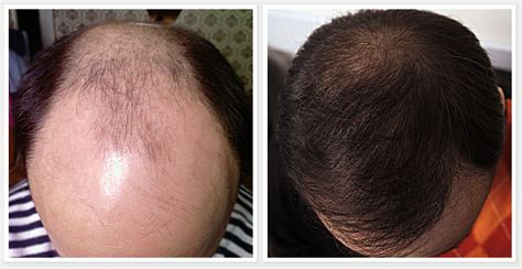 Say Bye To Baldness With The Help Of Propecia | remedymart