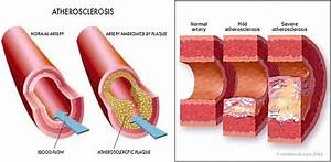 Atherosclerosis As An Example Of S5  Source