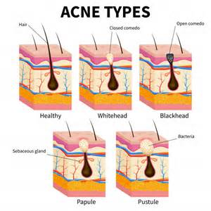 Acne Types  Pimple Skin Diseases Anatomy Medical Diagram Vector