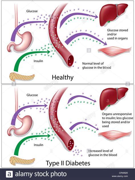 schema illustrant le diabete de type  par rapport aux