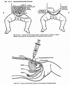 Urinary Tract Infection  Uti    Etiopathogenesis And Lab