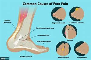 Foot Pain  Causes  Treatment  And When To See A Doctor