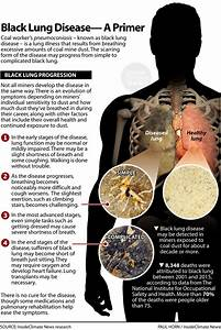Black Lung Disease  A Primer