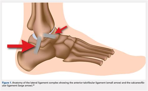 Foot and Ankle Injuries in Soccer | MDedge Surgery